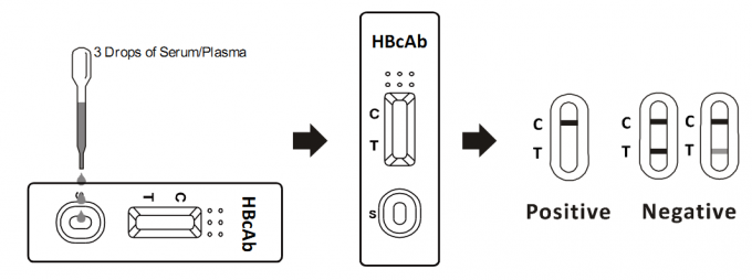 Medical Infectious Disease Blood Tests Strip , HBcAb Blood Test For Bacteria