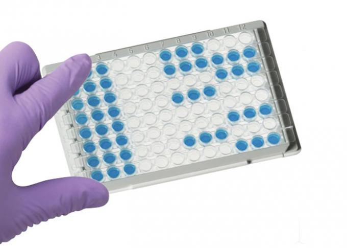 laboratory hiv elisa test kit 100  sensitivity plasma