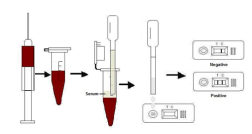 One Step TB Rapid Test Kit High Accuracy Immuno - Chromatography Technique